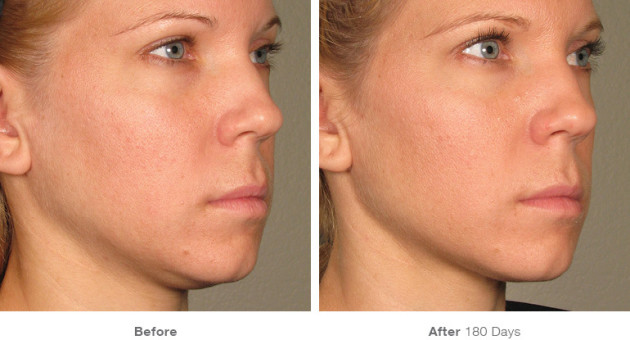 Ultherapy Before and After Photo. Courtesy of Ultherapy.