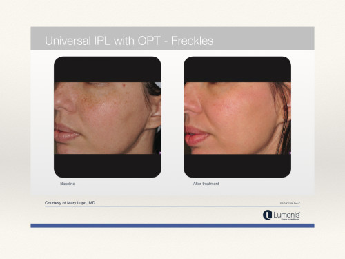 IPL-before-afters-lumenis-M22-copy.005-e1453696811971