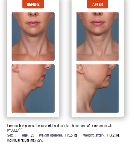 Liposuction-in-a-Needle for Double Chin Removal…Kybella Premiere ...